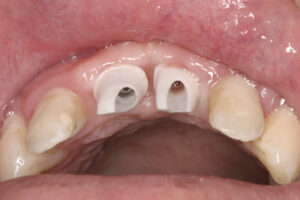 Dental Implants replace missing front teeth