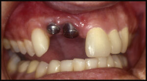 Dental implants have been placed in the positions of the central and lateral incisor.  There is significant loss of bone and tissue.