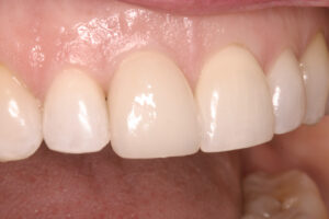 Restored with a dental implant and a porcelain crown - only her dentist would know that the front tooth is not 'real'!