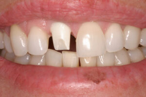 A porcelain abutment over a dental implant to replace a missing front tooth.