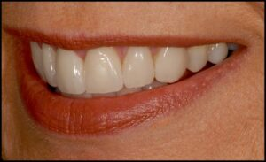A natural looking, beautiful smile achieved with porcelain veneers!