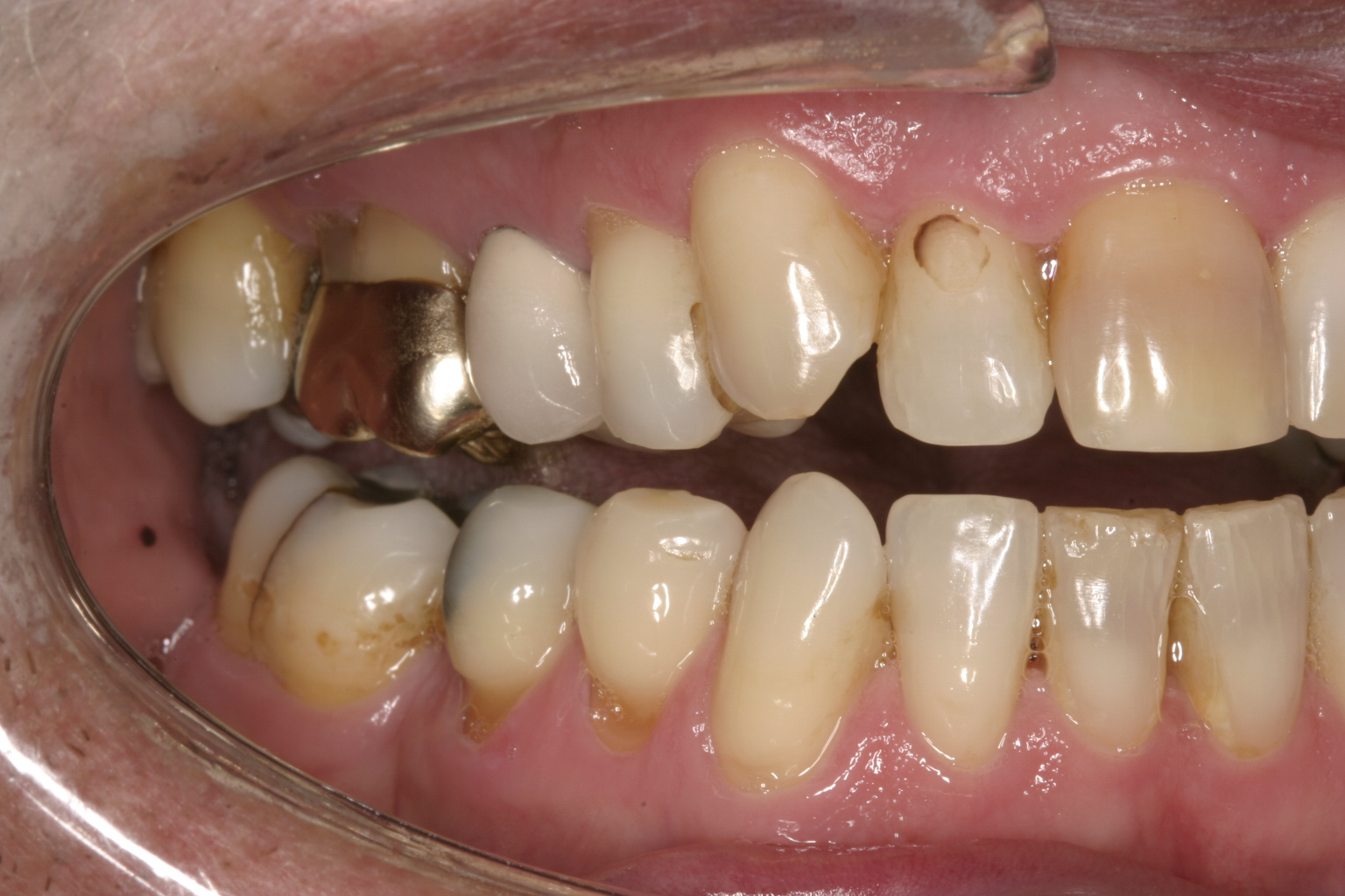 Can Stains Be Polished From Tooth Colored Dental Fillings