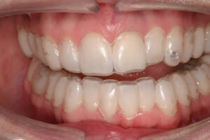 Custom made bleaching trays are made and worn for 30 - 60 minutes per day