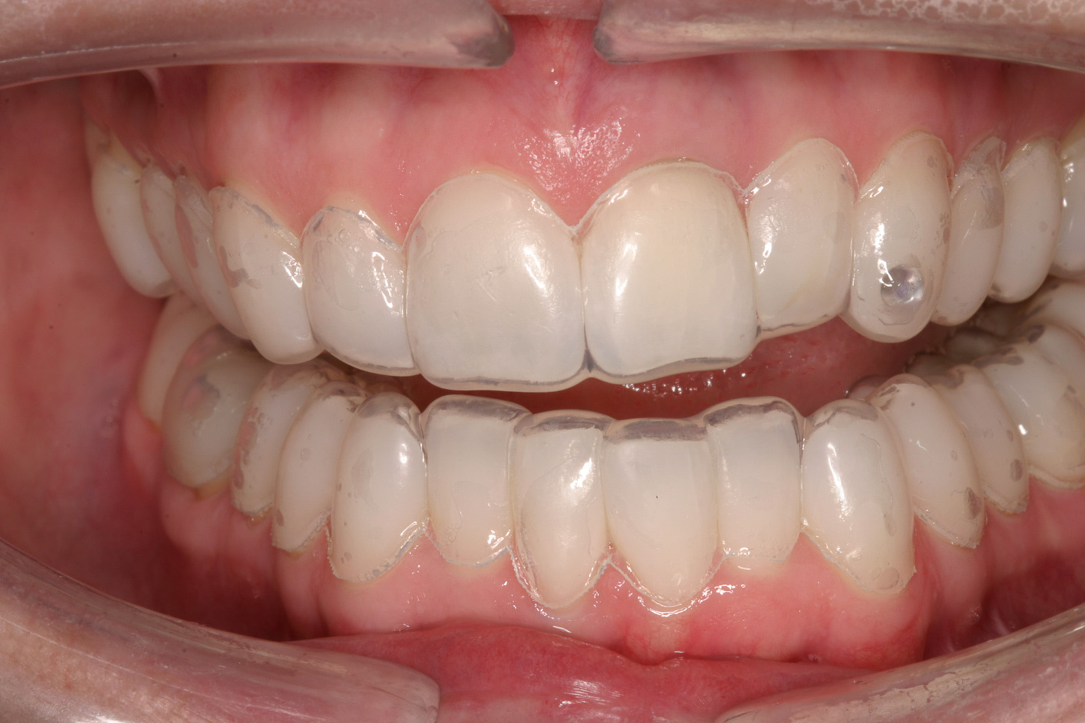 Did Your Dentist Ever Warn You About Tooth Bleaching And Bonding Julie M Gillis Dds