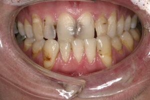 how to get healthy gums fast