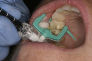 You can see here the infiltrating material flowing through the special carrier into the conditioned tooth.