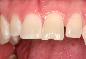 Small chip in tooth due to trauma can be easily restored.