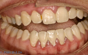Advanced periodontal disease and gingivitis or gum disease prior to treatment.
