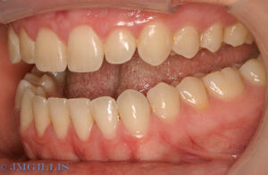 Periodontal disease after treatment