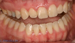 Advanced periodontal disease and gum disease after treatment.