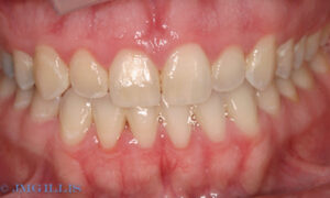 Periodontal disease and gum disease following treatment - bone loss remains but gums have healed.