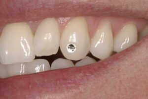 Tooth Sparkle on patient's canine tooth.