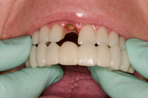 A Snap-on Smile fits over the remaining teeth and replaces the missing tooth.