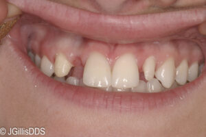 Lateral incisor is missing on one side and peg shaped on the other!