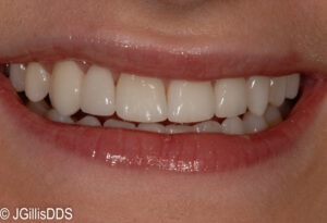 Smile restored with a combination of porcelain veneers and a porcelain cantilever bridge.