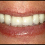 Porcelain veneers have transformed this smile!