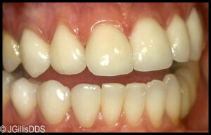 Appearance is much improved with porcelain veneers.