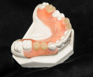 The seated flexible partial denture.