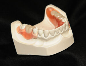 Removable partial denture with aesthetic, gum colored clasps.