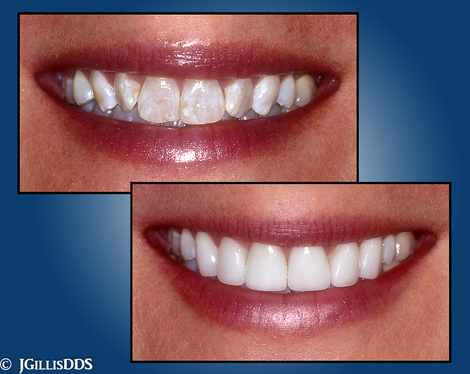 These before and after phtotographs display the enormous benefits to a patient choosing to have cosmetic dentistry by AACD accredited dentist, Julie M Gillis DDS. AAACD. Fluorosis stains on healthy teeth before and after treatment with porcelain veneers.