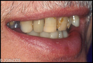 Patient's smile prior to any restorations.