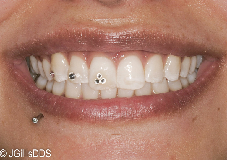 This patient got pretty creative with her placement of sparkles!