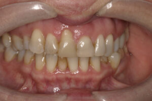 The gum tissue has healed with an area of gum recession.