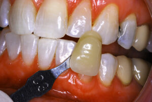 Following custom tray tooth bleaching.