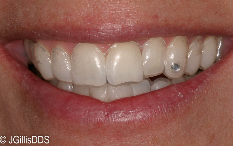 Custom bleaching trays in place. They are thin, comfortable and custom fit for you in our office.