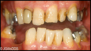 stained and decayed teeth