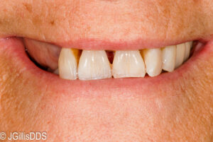 Without Swing-Lock Removable Partial Denture