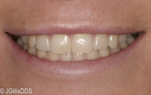 Following conservative gingival plastic surgery.