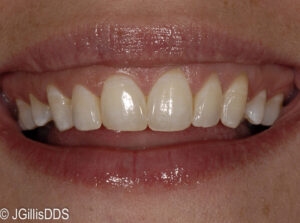 Prior to conservative gingival plastic surgery.