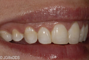 Patient wanted her teeth to appear fuller and more uniform while avoiding any preparation of the teeth if possible.
