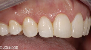 Following gum surgery you can notice the appearance of larger teeth and a more even gum line which leads to a more pleasing smile!