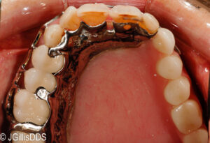 Sinus areas are covered and protected when the obturator is in place. The patient can enunciate much better also!