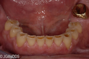 Severe tooth abrasion has created cupped lesions in the teeth.