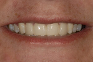 Following conservative treatment with porcelain veneers.