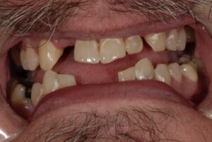There are many issues here! One of these is an underbite is present. Appearance with the teeth apart.
