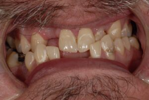 There are many issues here! One of these is an underbite is present. Appearance with the teeth together.