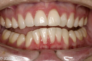 Generalized slight to moderate gum disease or gingivitis
