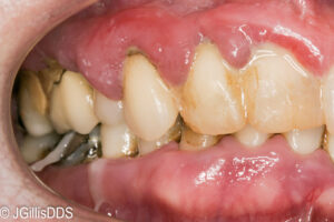 Severe periodontal disease and gingivitils.