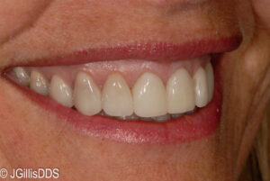 Smile makeover after conservative treatment with porcelain veneers and a 'gum lift'!
