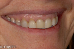 Gummy Smile? Dark Teeth? A Smile Makeover Can Help!