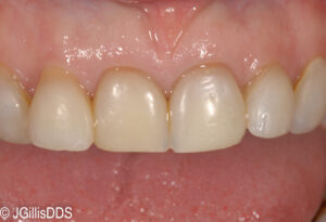 A gummy smile and dark , short teeth detract from this smile. A Smile Makeover Can Help!