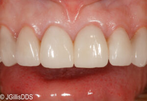 A more attractive smile after treating with conservative gingival plastic surgery and porcelain veneers.