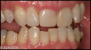 After treatment with Invisalign type appliances
