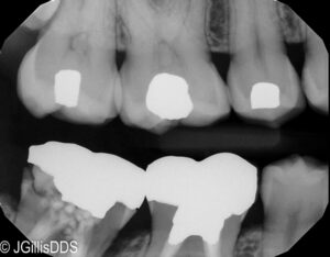 Tooth Decay below crown evident as dark areas below the white metal crown. Root canals have been completed on both molars. First molar has a more normal radiographic appearance.