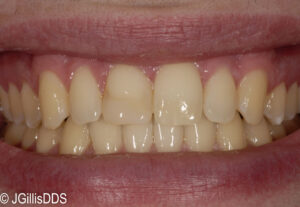 Existing composite or tooth colored filling (restoration) is very stained and the overall color of the teeth is very dark.