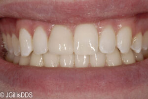 Composite or tooth colored filling replacing the existing stained restoration on the front tooth.